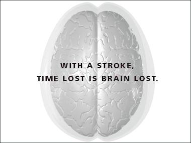 stroke_brain
