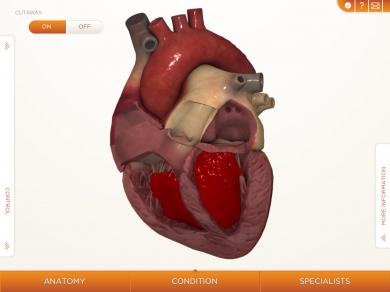 Orca Health Releases Free HeartDecide iPad App - Liz Gannes