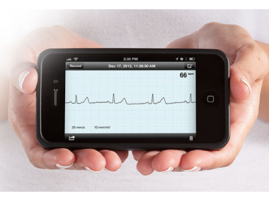 Mobile medical AliveCor-feature